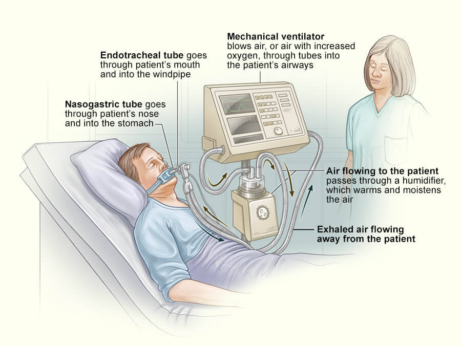 What Is Ventilator in Hindi